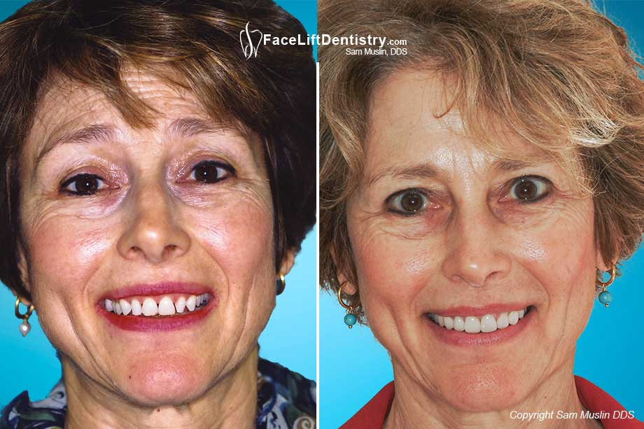 Treatment with porcelain crowns - before and after