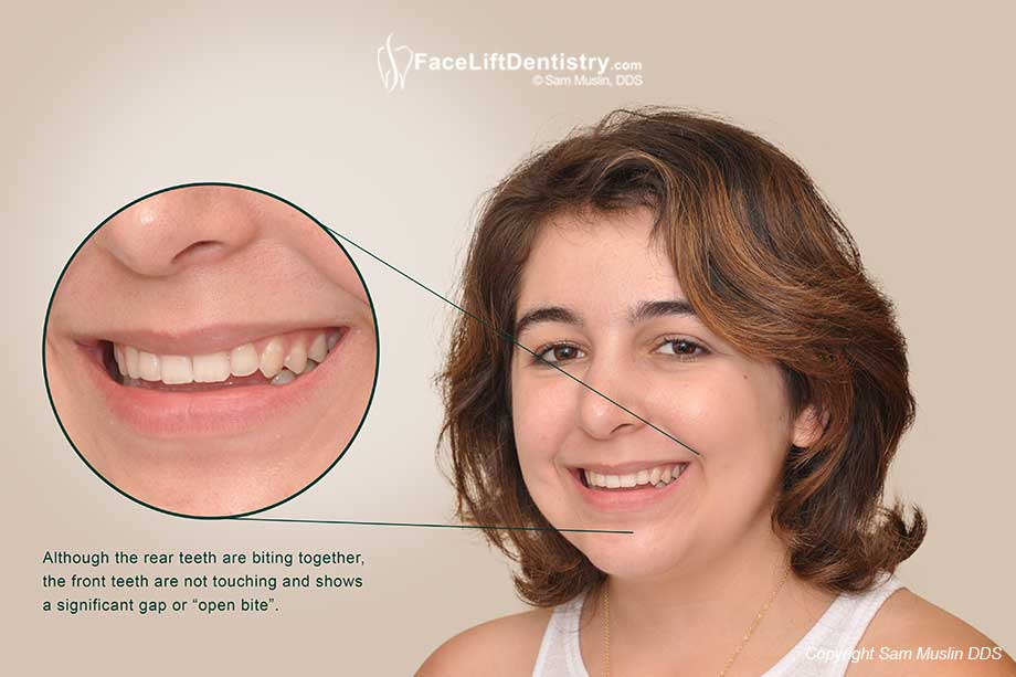 Open Bite Treatment without Surgery or Braces in 4-Weeks