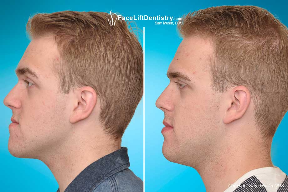 Before and After profile photo of adult male after protruding chin and underbite corrected