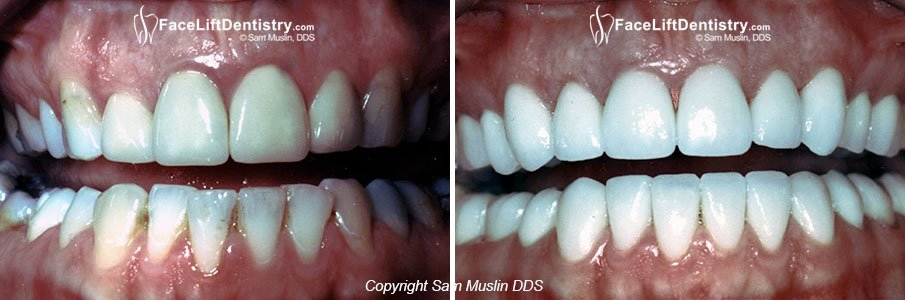 Gummy Smile fixed with Advanced Cosmetic Dentistry