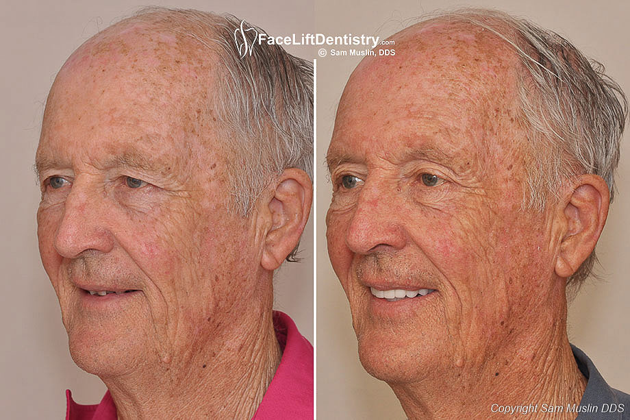 Before and After Anti-Aging Dentistry: Ten upper teeth with non-invasive porcelain veneers gave this patient a better smile because the porcelain veneers have improved his smile and filled in the gaps.