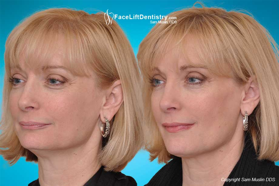 The Aging Mouth - Before and After Treatment with Anti-Aging Dentistry