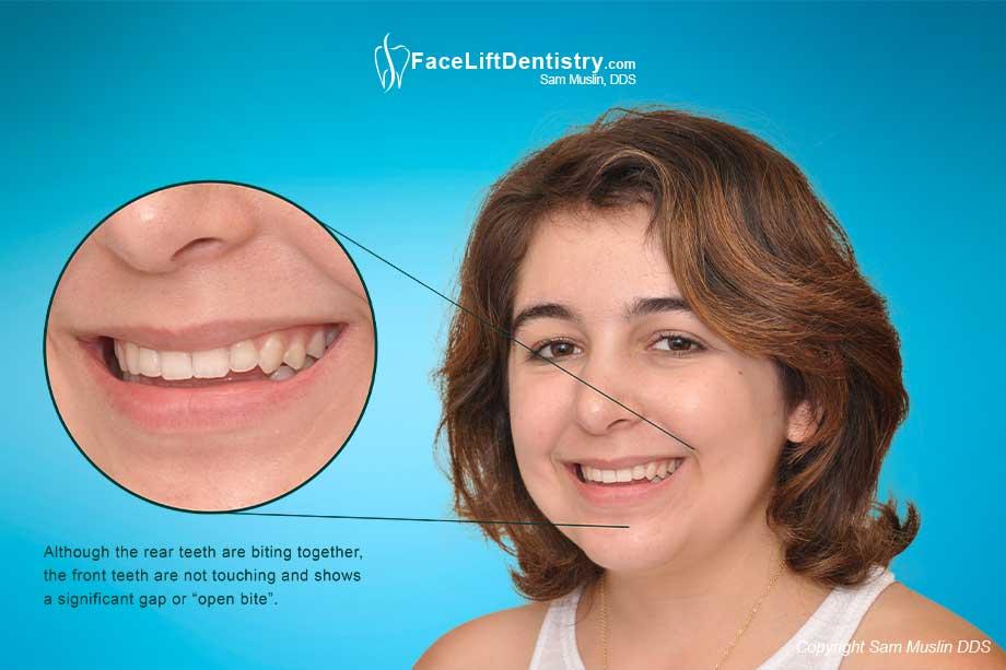 Fix Teeth At Home