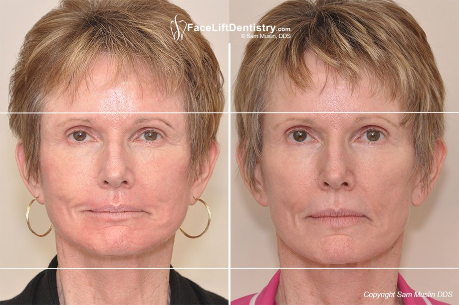 Reversing Aging by optimizing the jaw position