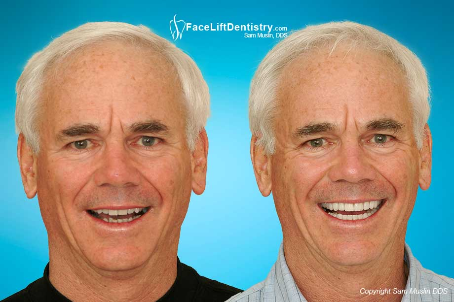 Anti-Aging Cosmetic Dentistry - Before and After