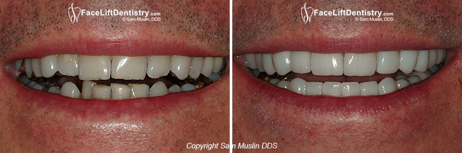 Anti-Aging Cosmetic Dentistry - Closeup - Before and After