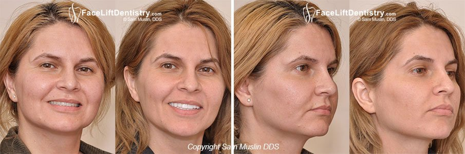 Anti Aging Dentistry - Profile view