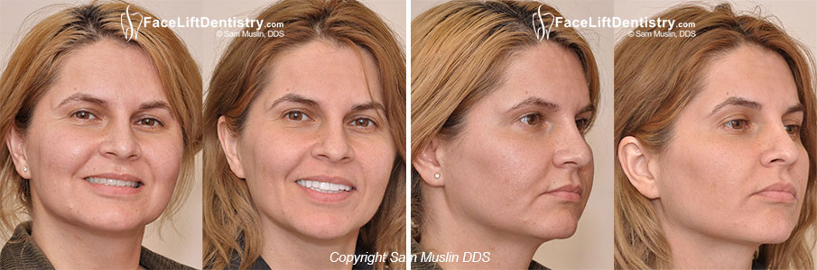 Face Lift Dentistry<sup>&reg;</sup> transforms faces with TMJ and age reversal benefits