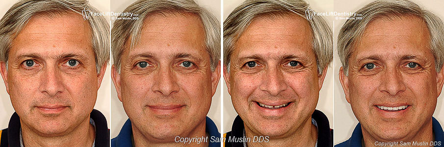 The picture series shows how the shape of your face can be changed by Face Lift Dentistry<sup>&reg;</sup> resulting in a masculine chiseled chin