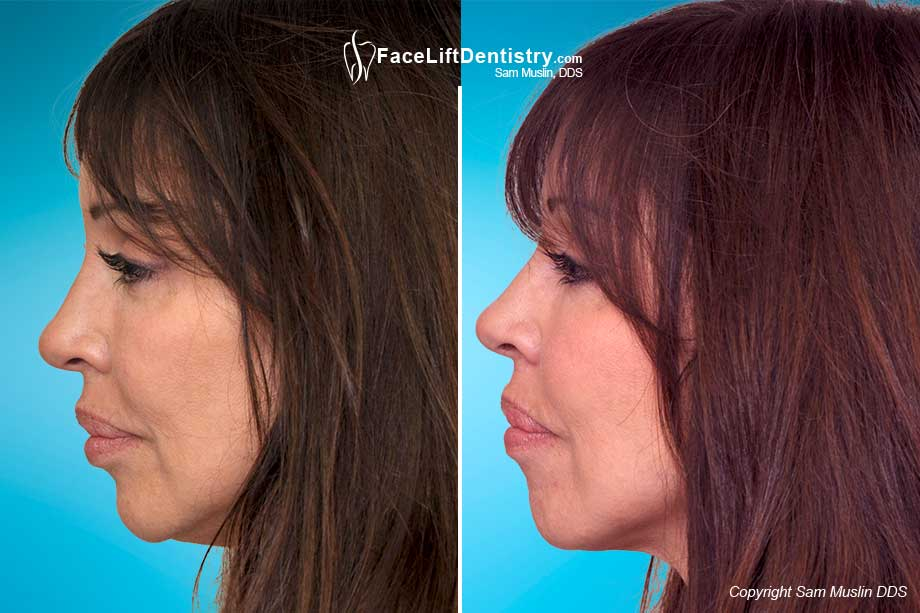 Anti-Aging dentistry corrected her profile and gave her a younger look - Before and After treatment