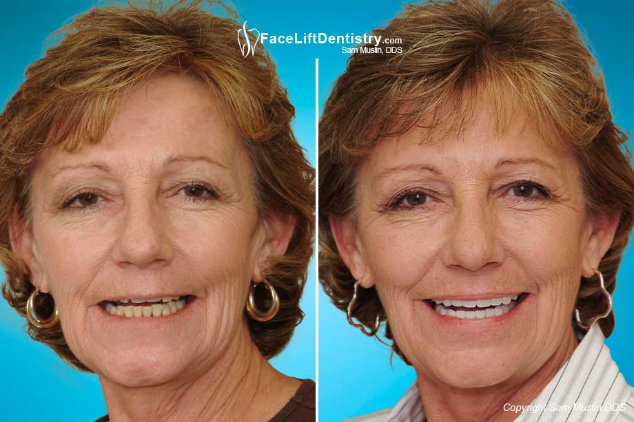 Anti Aging Facelift Dentistry