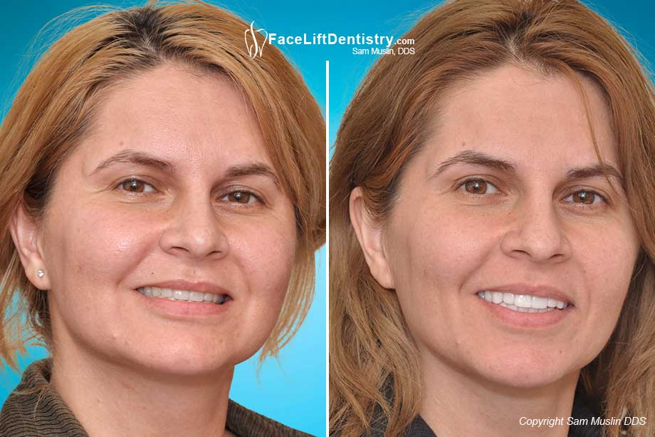 The before and after photo of a patient after Overbite Correction without Surgery showing remarkable anti-aging and facial profile correction.