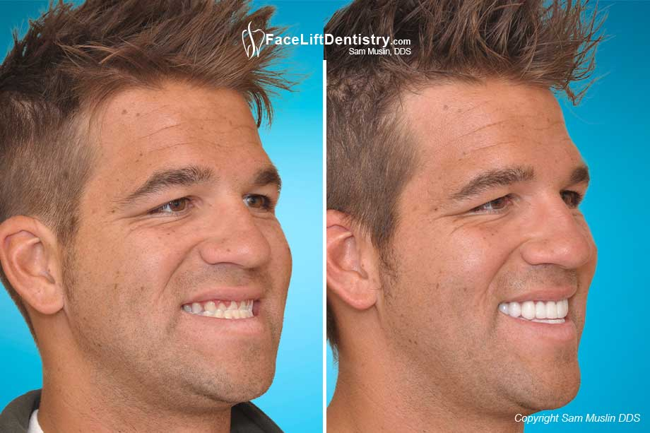 Large-Looking Chin and Underbite Corrected - Before and After Treatment