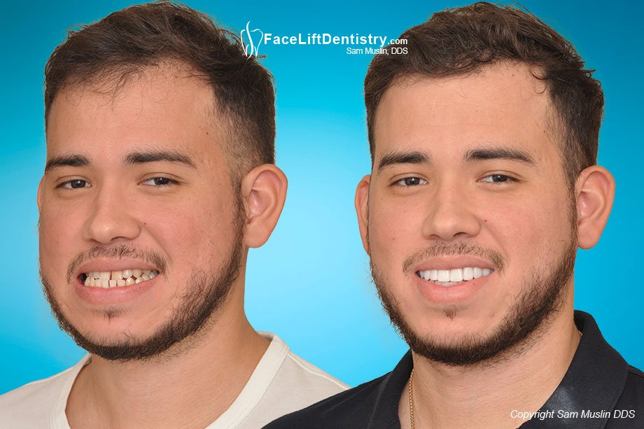 Jaw surgery is not your only choice - before and after underbite correction without surgery.