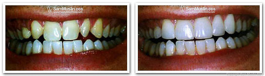 A Baby Boomer shows the difference Porcelain Veneers make in these closeup photos