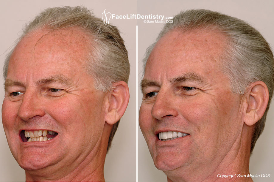 Improved Quality of Life with Anti-Aging Face Lift Dentistry<sup>&reg;</sup> - Before and After photos