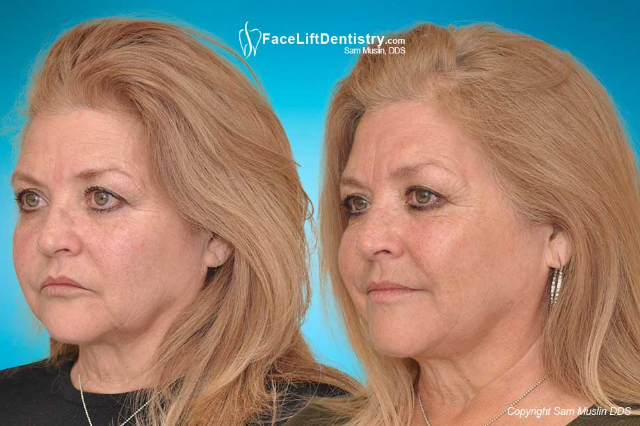 The wrong jaw position and bite can minimize our facial aesthetic potential. The After-Photo on the right shows a much improved jaw position and bite.