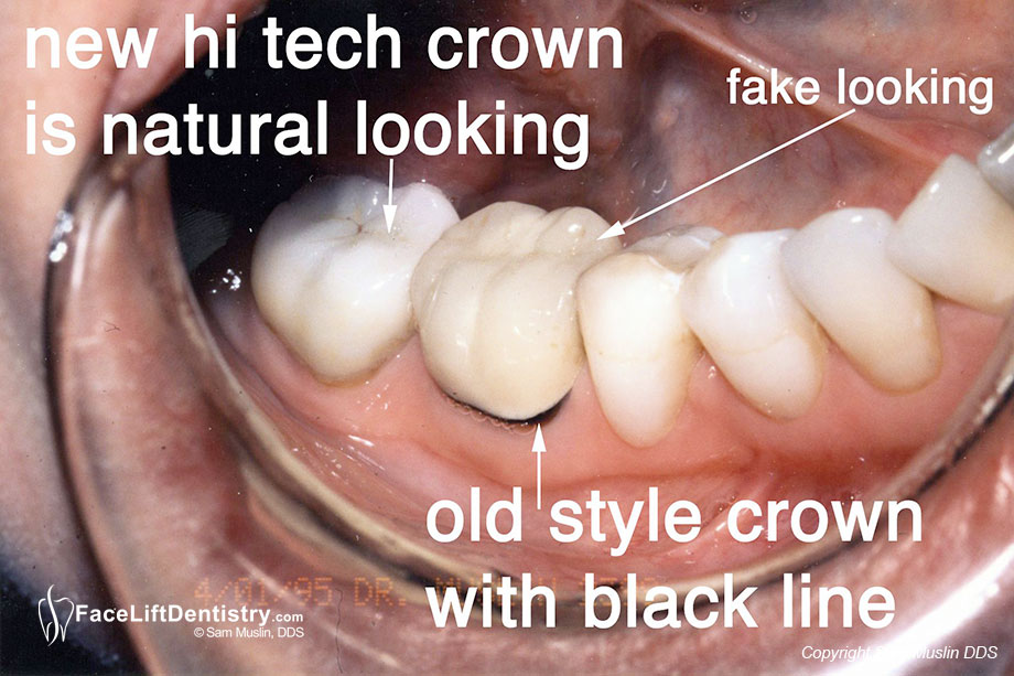 Old Style Crown with Black Gum Line
