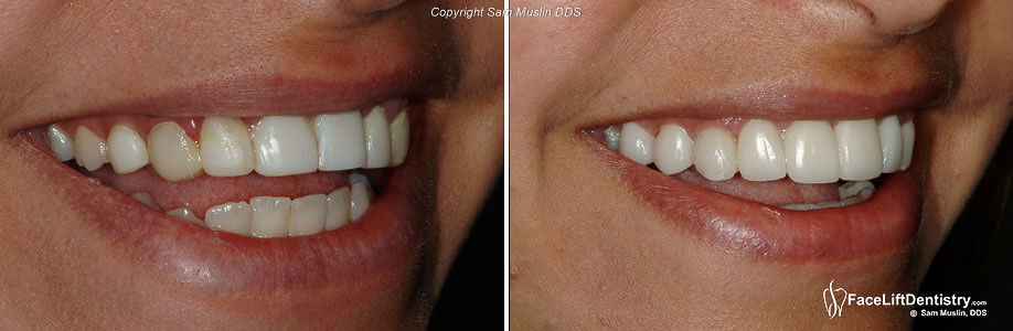 Bad Porcelain Veneers Replaced - Before and After