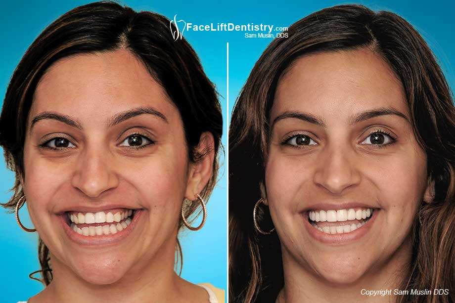 Replacing Bad Porcelain Veneers