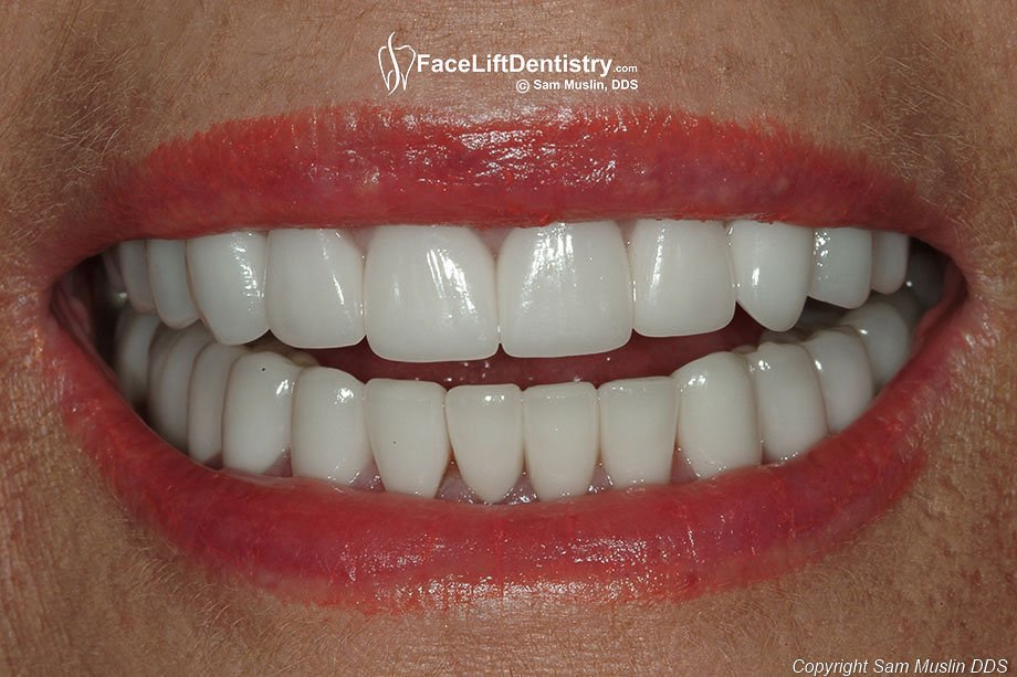 The photo shows the same patient with her bite corrected and porcelain veneers replaced.