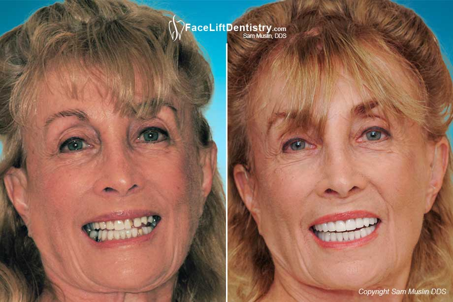 Before the treatment the stress on the mouth is quite visible, which probably resulted in broken veneers. After the treatment the patient now has her ideal jaw position and jaw TMJ stress is greatly reduced.