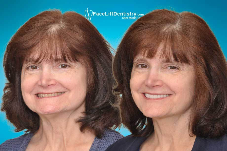 Before and after photo showing corrected facial collapse and deep overbite.