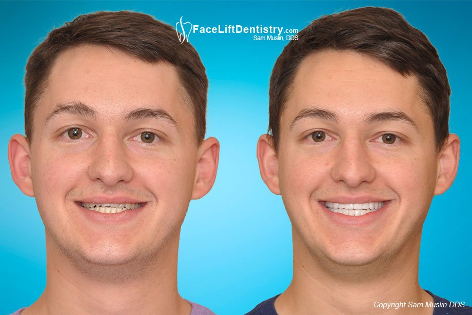 Before and After adult underbite correction without surgery or braces.