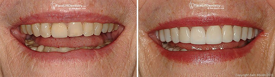Close-up Photo showing Before and After Bite Correction