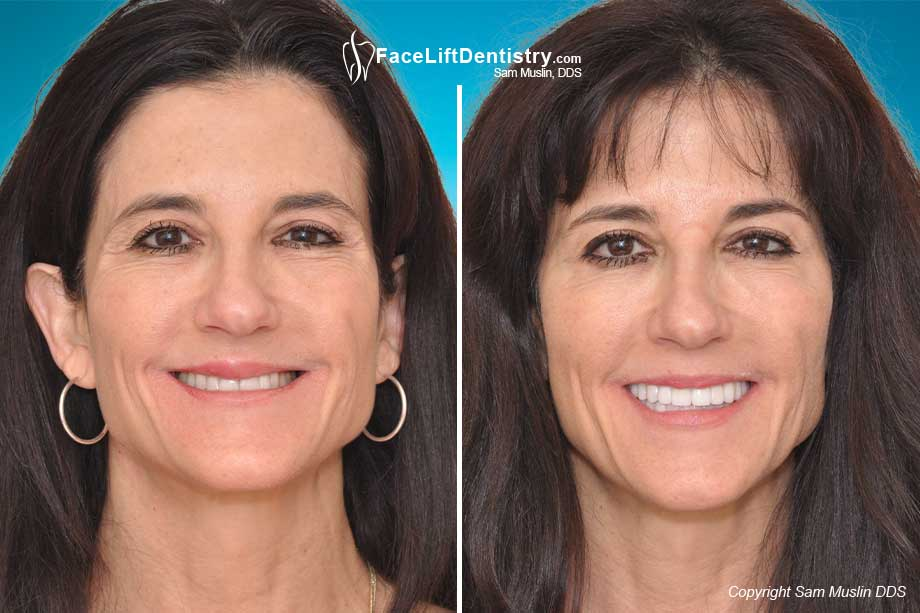 The photo shows the difference between a porcelain-veneers-cosmetic-dentistry smile Bite Correction with VENLAY® Restorations.