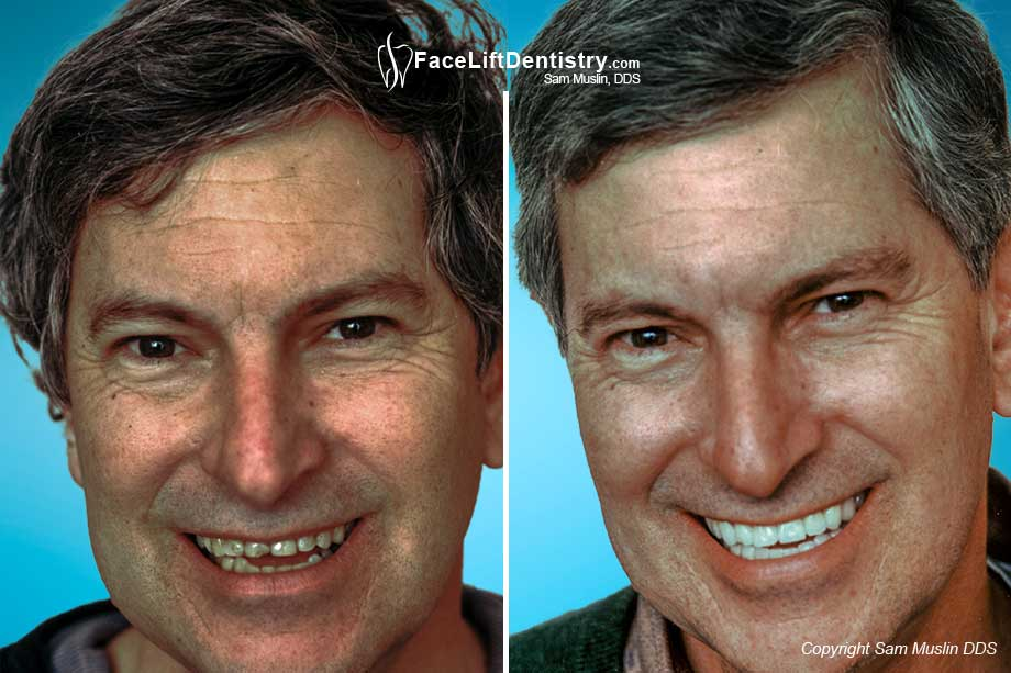 Bite Reconstruction with Facelift Dentistry - Before and After