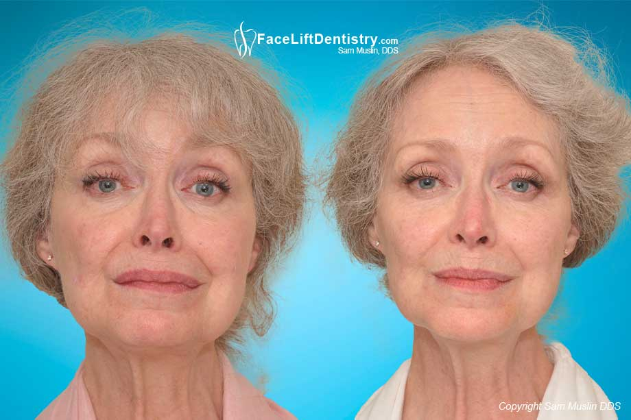 A wider smile and aesthetic enhancement - before and after VENLAY