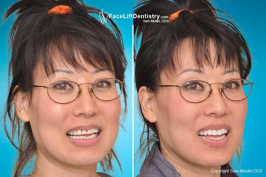 Treating The Dreaded Black Traingle Between Teeth