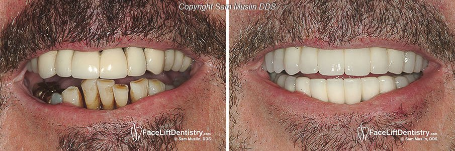 Teeth Extractions followed by Bone Grafts and Temporary Bridges