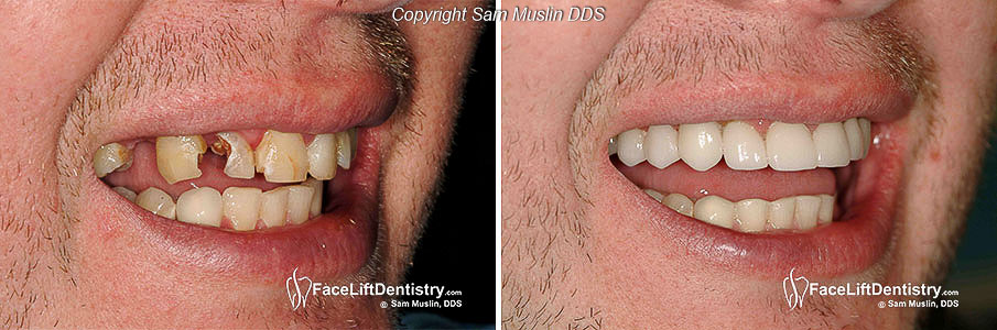 Close-up of broken teeth before and after treatment