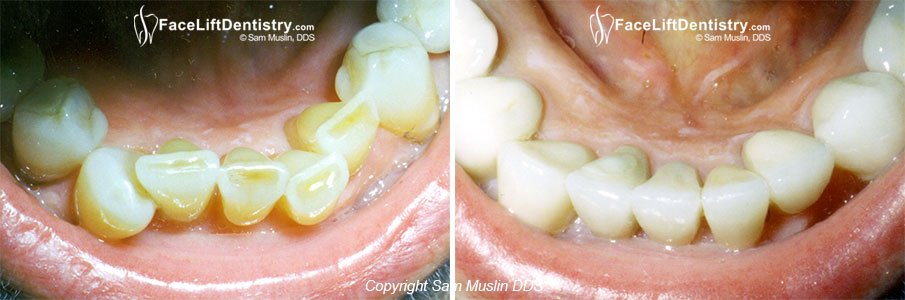 New Crowns - Healthy Gums and Straight Teeth