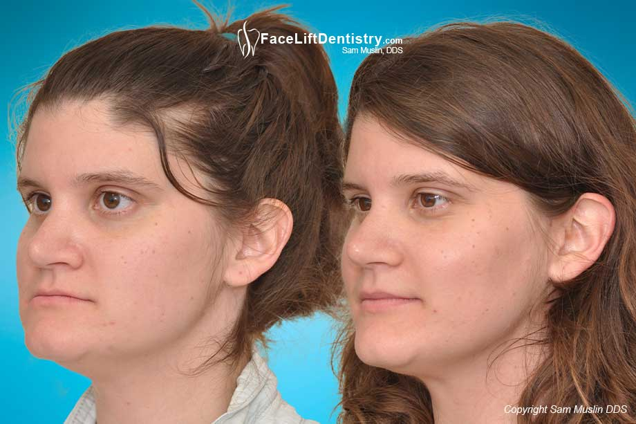 After failed braces, non-surgical malocclusion correction