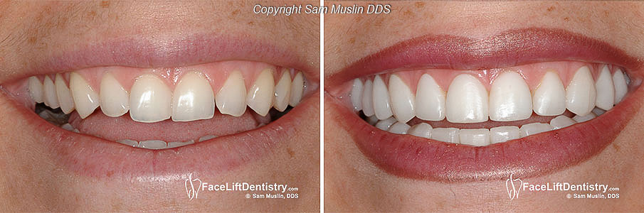 Perfect Porcelain Veneers