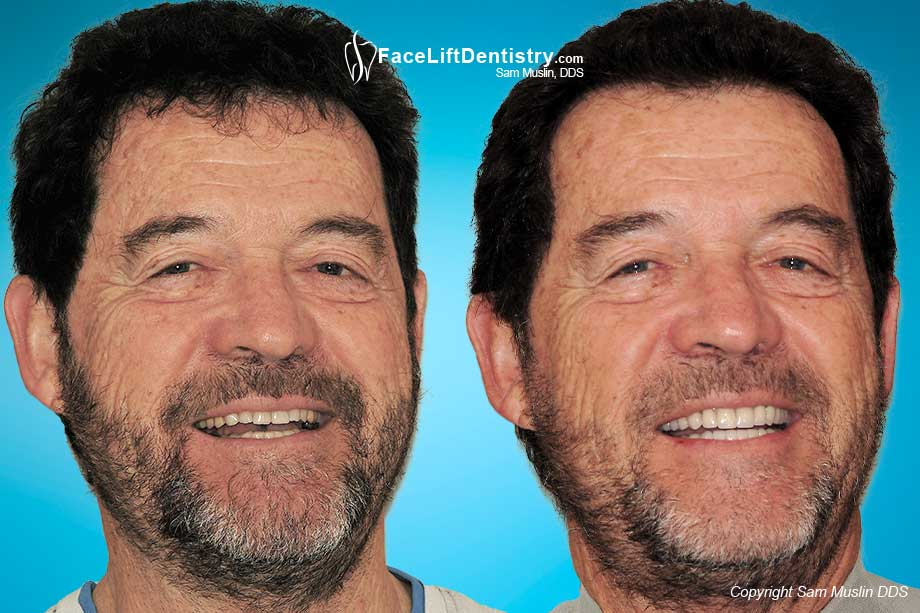 Cosmetic Anti-Aging Facelift Dentistry - Before and After Photos