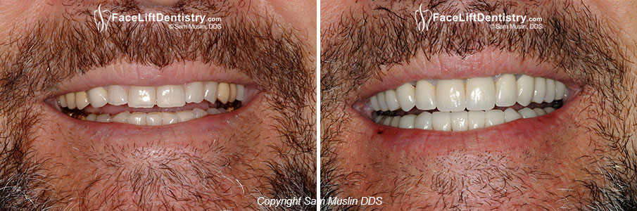 Before Anti-Aging Dentistry Photos - Before and After