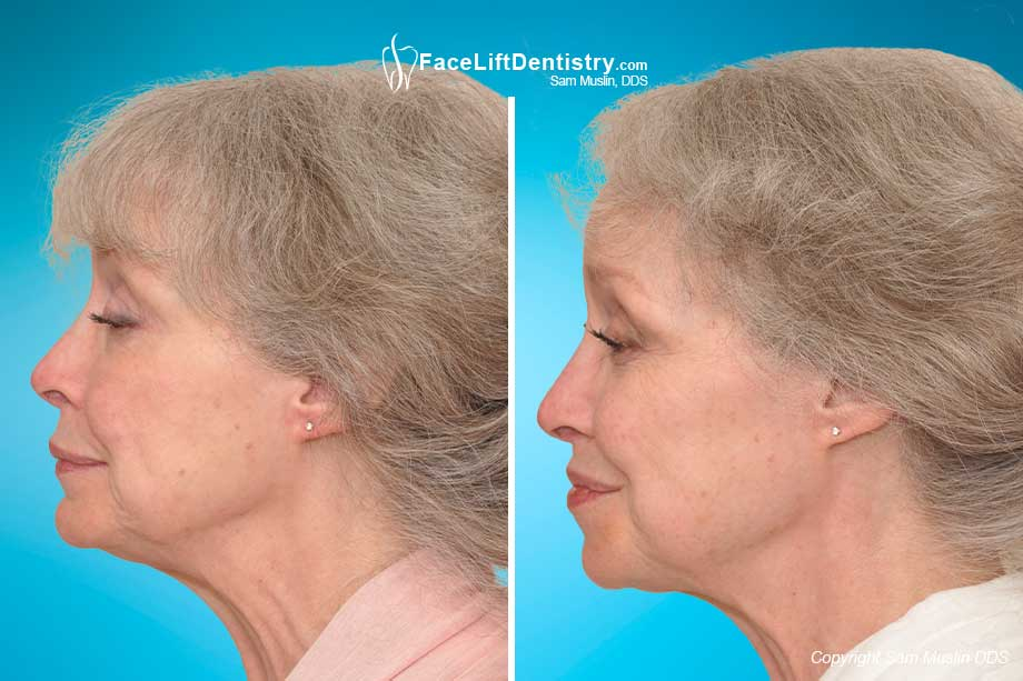 The Cosmetic Benefits of VENLAY, Before and After Photo