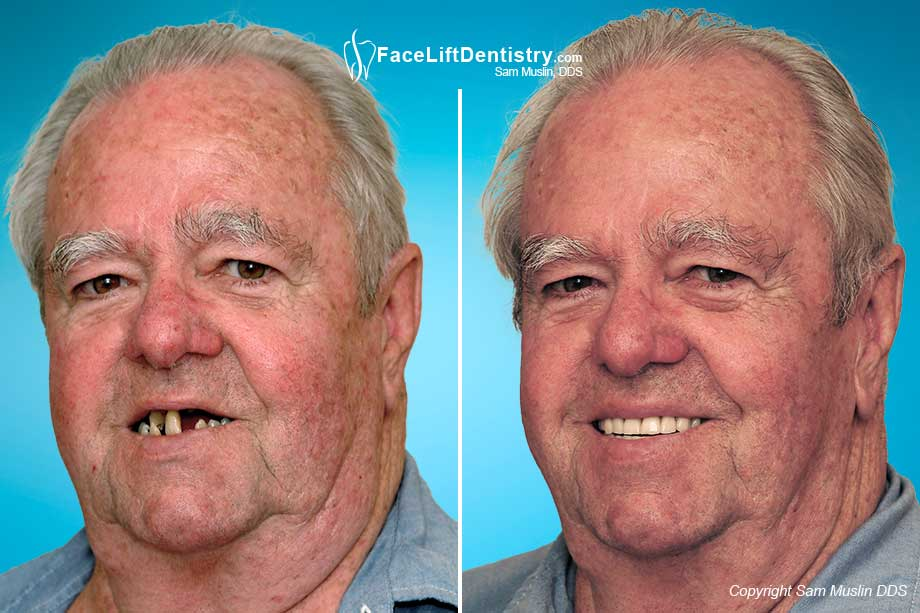 The photo on the left shows tooth loss due to gum disease. The photo on the right shows the same patient after full mouth reconstruction.