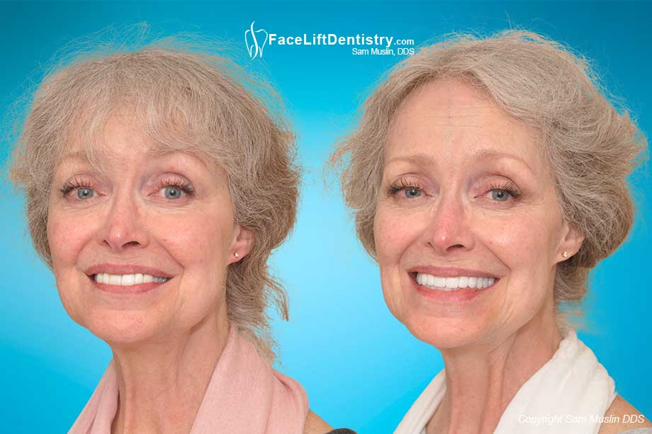 Old Cosmetic Dentistry Replaced with VENLAY Restorations - Before and After Photo