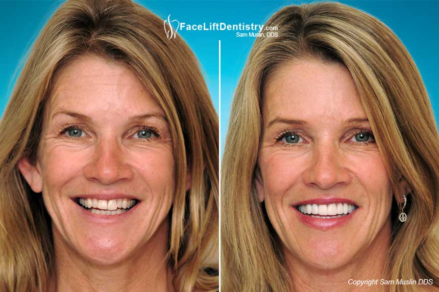 No Surgery Bite Correction Mouth Reconstruction Face Lifts