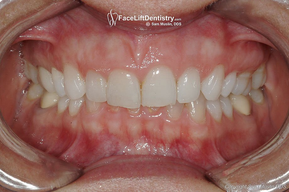 Image Gallery Overbite Causes