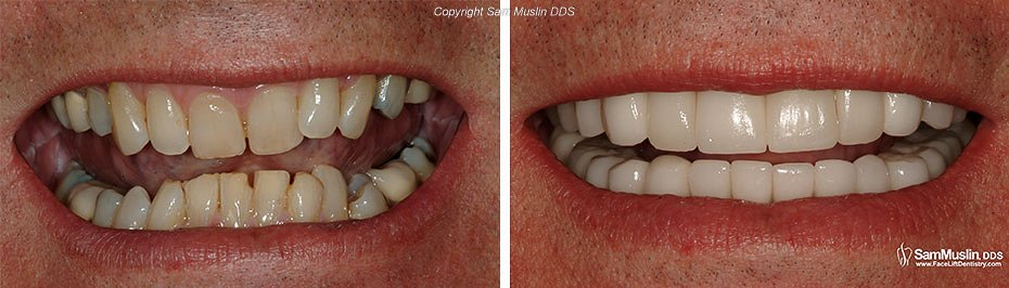 Closeup photo of a deep bite, before and after treatment.