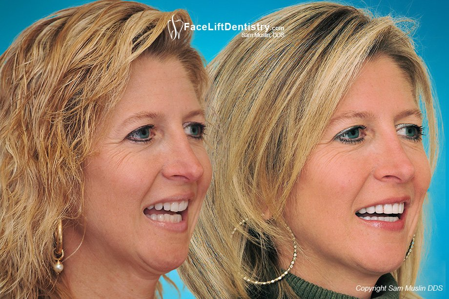 Teeth angled inward made her overbite worse. The after photo was taken after treatment without braces or aligners.