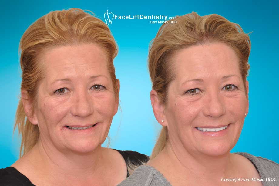 Before and After neuromuscular dentistry problems corrected with the Face Lift Dentistry<sup>®</sup> method.