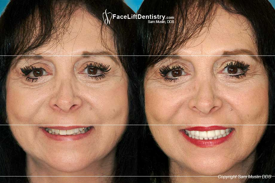 Before and After picture showing the revitalizing effect of the Dental Face Lift