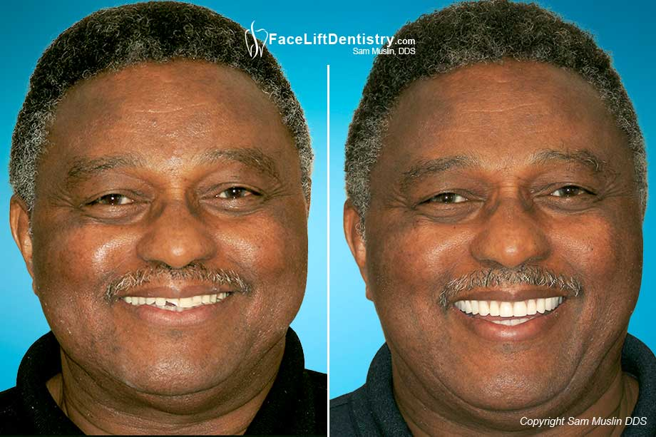 Full Mouth Reconstruction with Dental Implants - Before and After